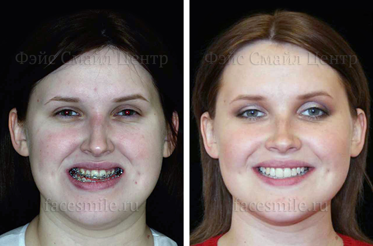Corrective jaw surgery and bite correction profile view no smile