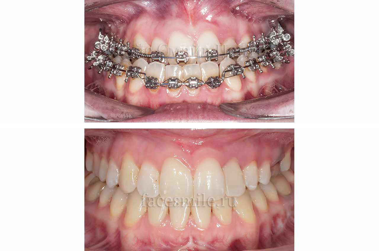 Corrective jaw surgery and bite correction front view with smile