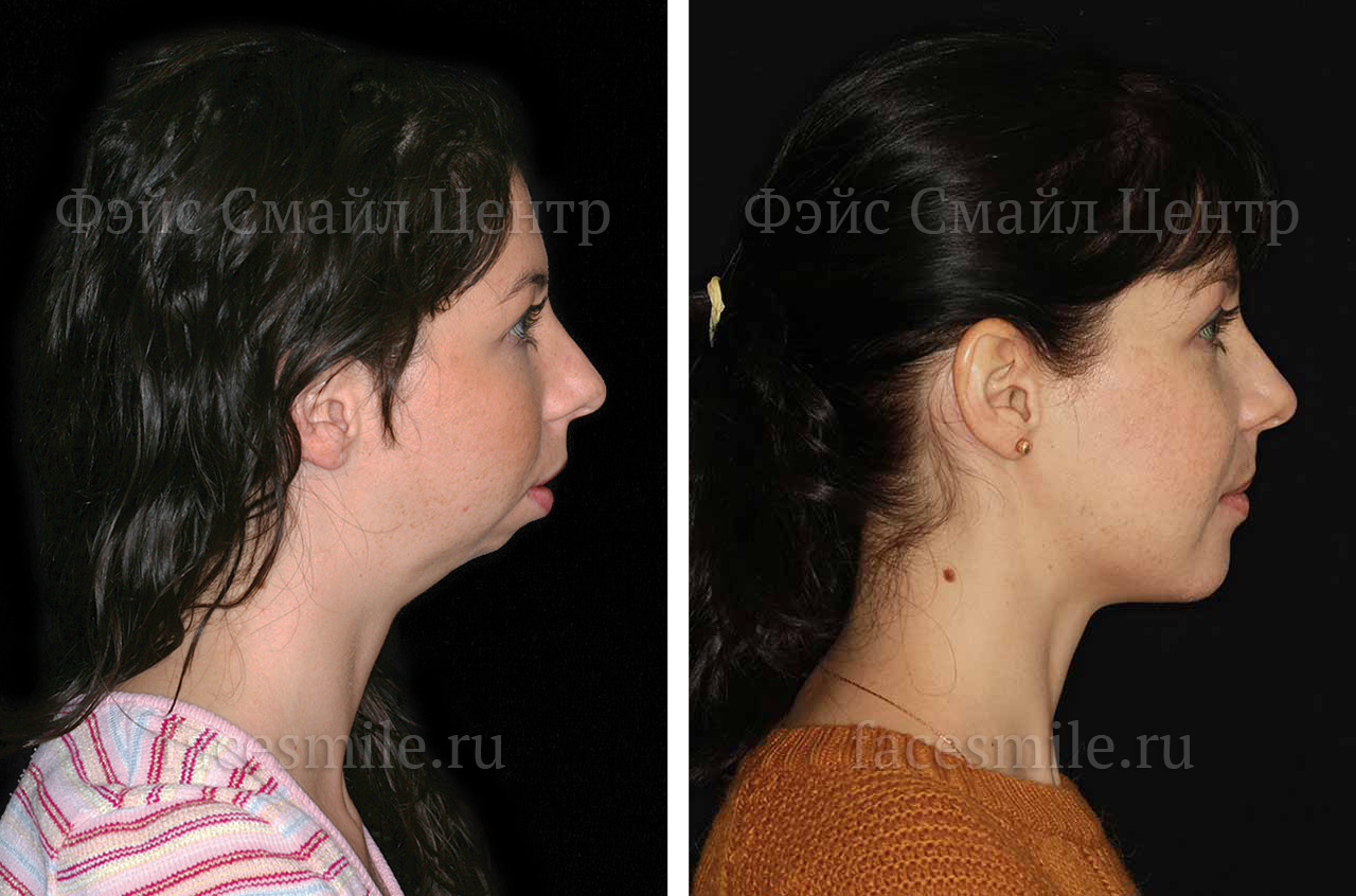 Corrective jaw surgery and bite correction three quaters view with smile