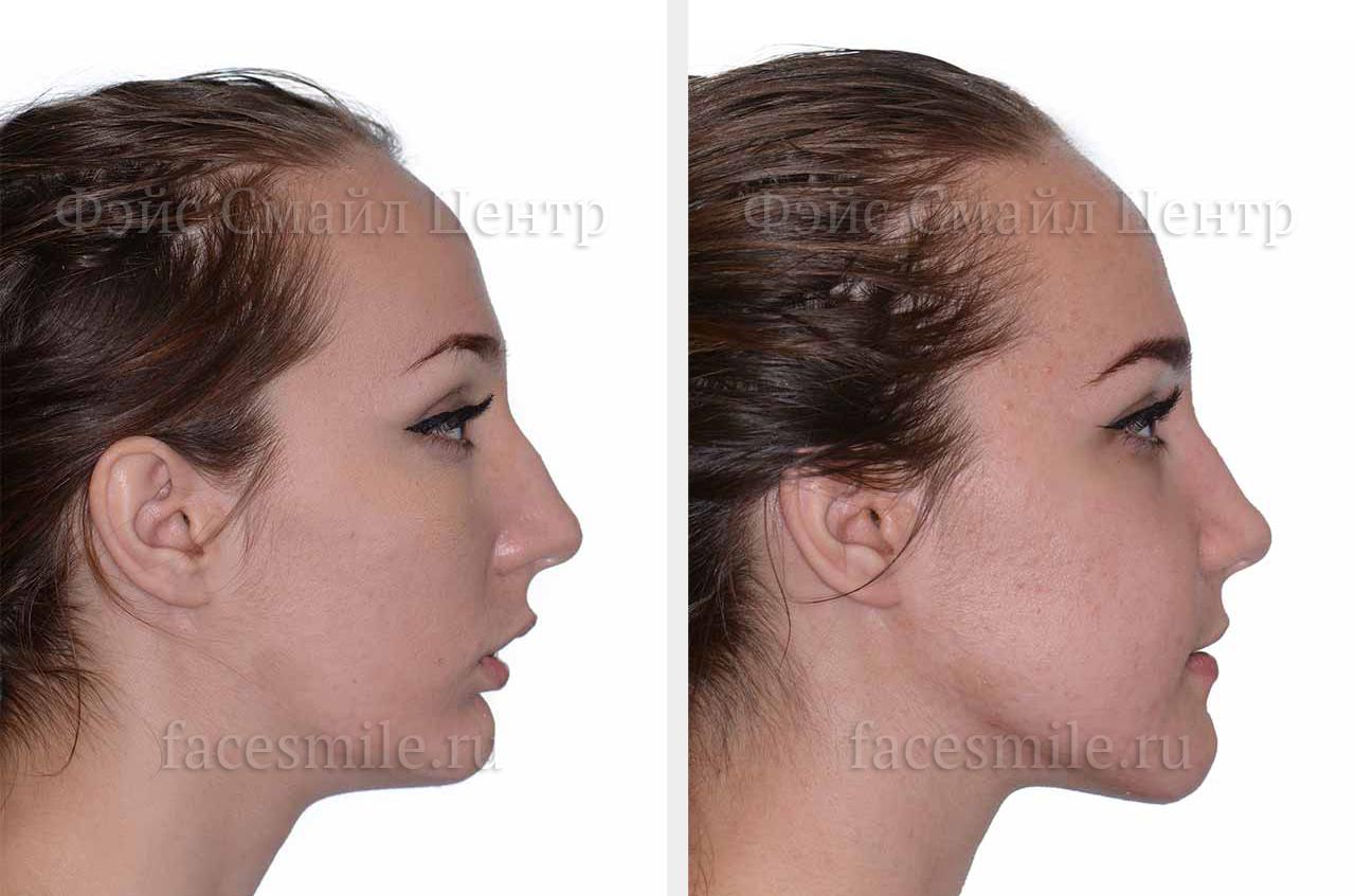 нижняя челюсть вперед в картинках